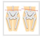 骨盤を中心に身体全体の歪みが整い不調が改善します!